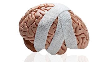мозг, бинты