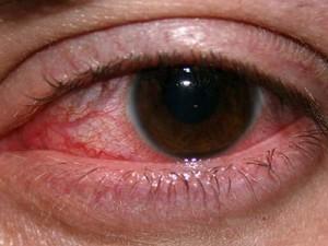 Народные средства против ожога глаз сваркой