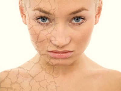 сухая кожа