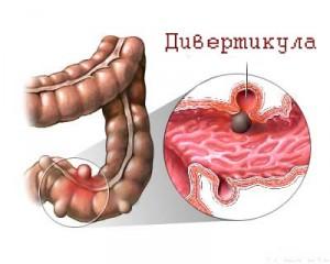 Дивертикулез толстого кишечника: симптомы и лечение народными средствами