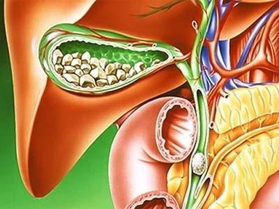 Калькулезный холецистит и его лечение народными средствами
