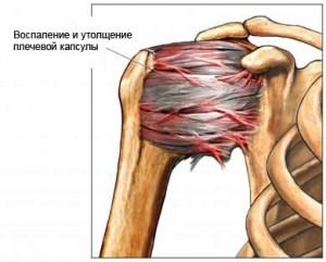 Изображение - Периартроз плечевого сустава лечение народными средствами vospalennyj-sustav