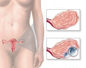 Киста яичника у женщины симптомы и лечение причины возникновения
