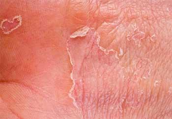 экзема на коже