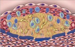 Атерома: лечение народными средствами, симптомы, причины
