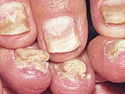 Ониходистрофия - причины, виды, симптомы, методы лечения