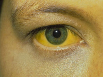 билирубин, желтизна глаза
