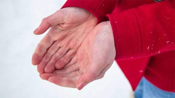 обморожение рук