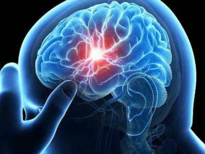 Лечение народными средствами аневризма сосудов головного мозга thumbnail